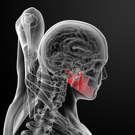 Verspannungen im Kiefergelenk können zu Nackenschmerzen, Tinitus, Kopfschmerzen und Schwindel führen